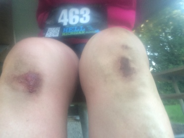 dirty, scraped knees and a race bib